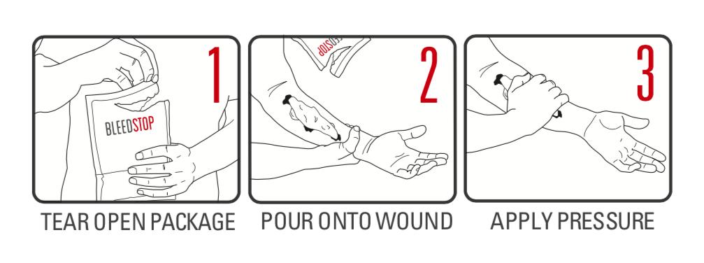 BleedStop how to use