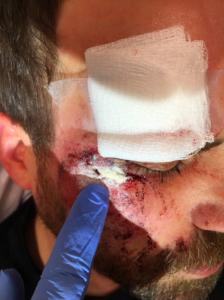 BleedStop Motorcycle Accident